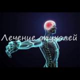 2.1.4. Лечение опухолей
